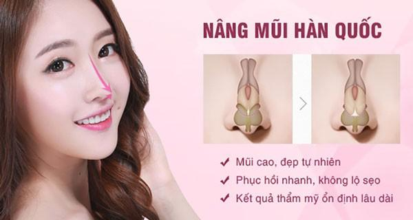 Nâng mũi Hàn Quốc là gì? Những điều bạn cần biết trước khi nâng mũi