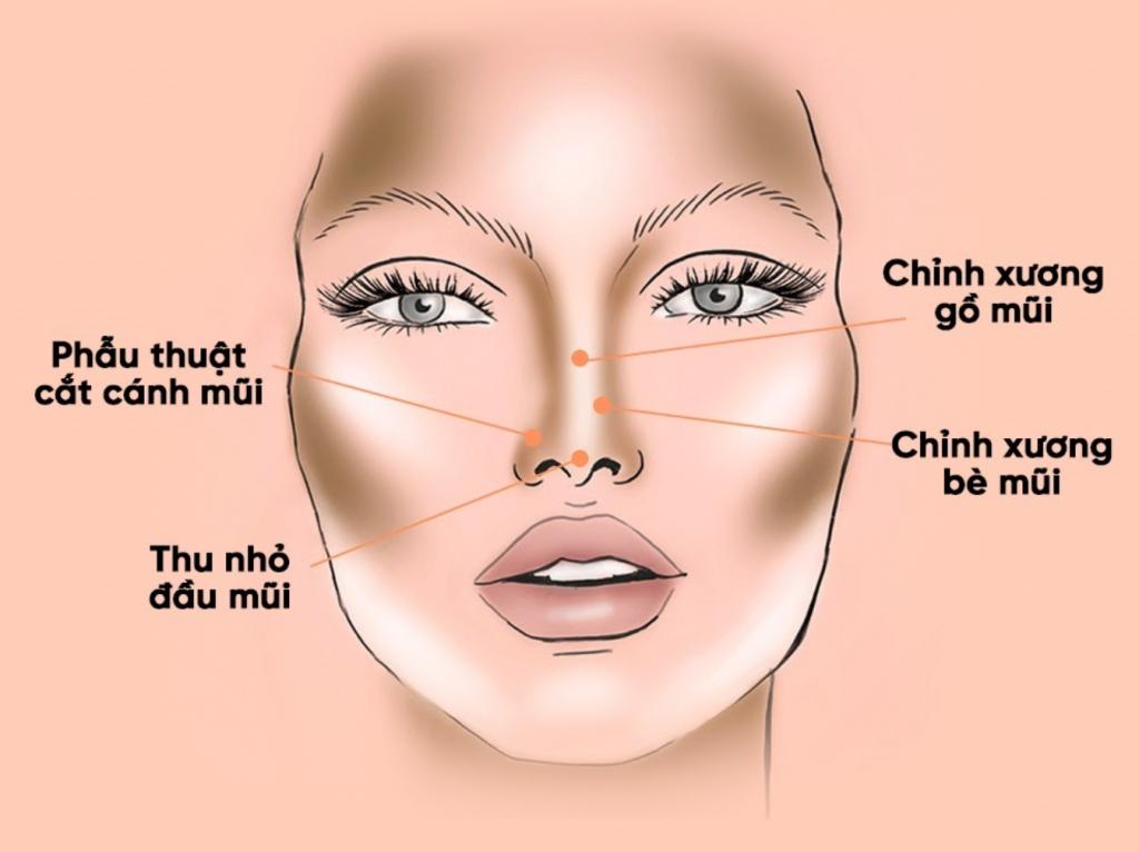 So sánh 6 phương pháp nâng mũi thông dụng, ưu và nhược điểm